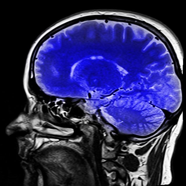 Исследования мозга картинка